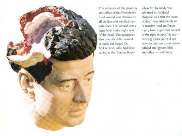 JFK Conspiracy – The Kennedy Brain