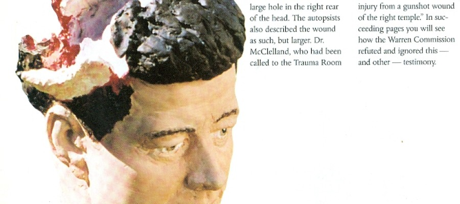 JFK Conspiracy – The Kennedy Brain